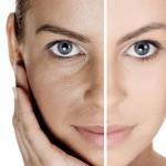 1340577245_404542325_2-fotos-de-curso-plasma-rico-en-plaquetas-en-rejuvenecimiento-facial