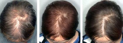 efectividad-tratamientos-alopecia-femenina-oviedo