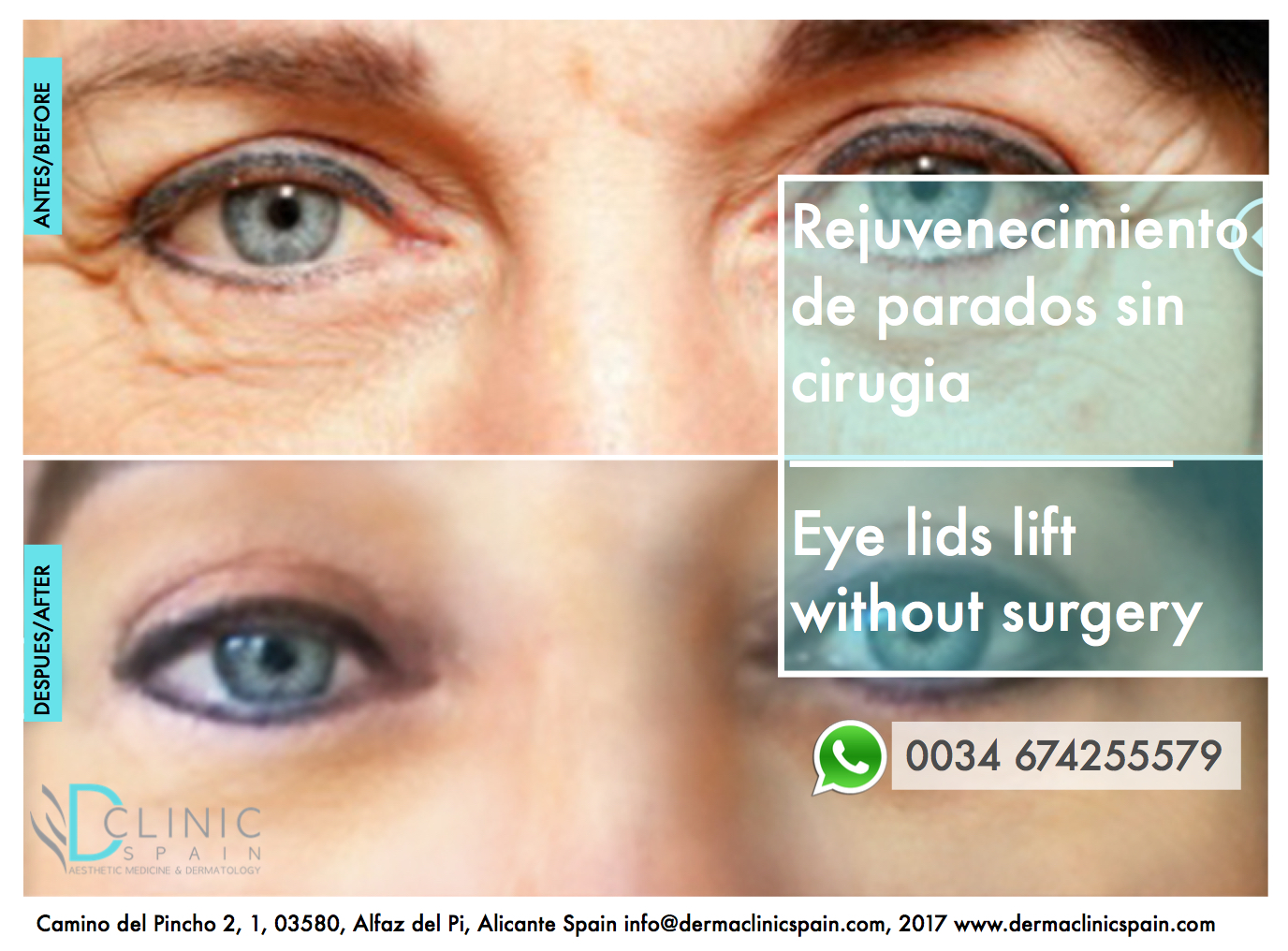 Wrinkle removal without surgery and skin excess from eyelids skin- rejuvenation of eyelids