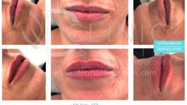 Lip fillers- not only for celebrities!