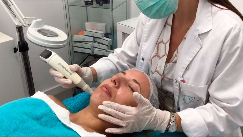 Tratamiento Facial Dermapen con microagujas