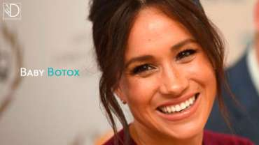 Baby Botox: what it is and for whom it is indicated