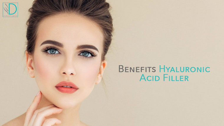 Benefits of hyaluronic acid filler