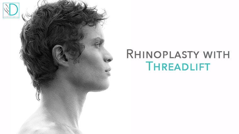 Non surgical  Rhinoplasty  with threadslift