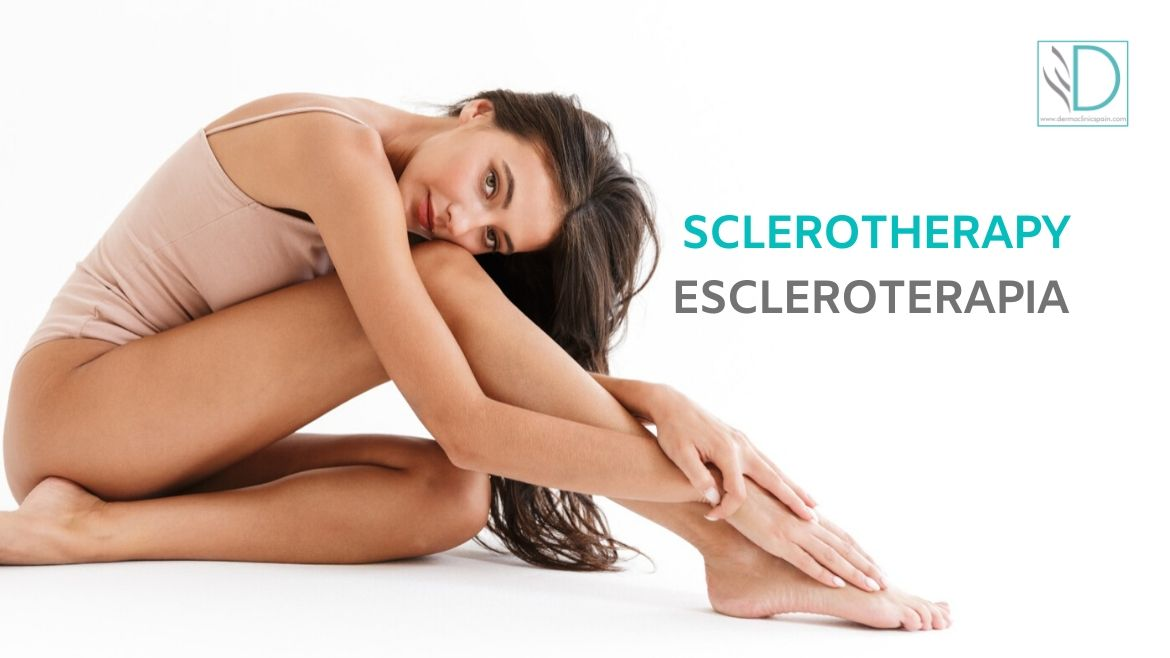 Sclerotherapy: a solution for varicose veins and spider veins