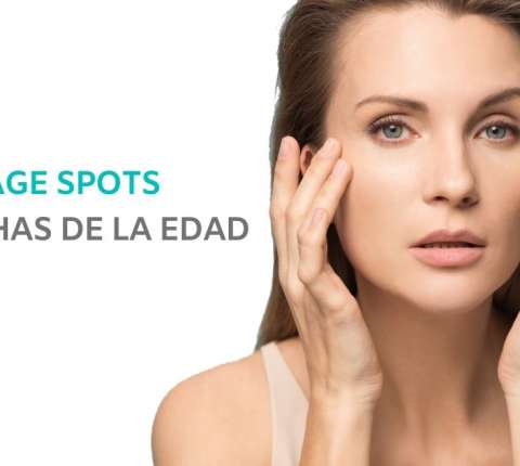 How to remove age spots that appear over time