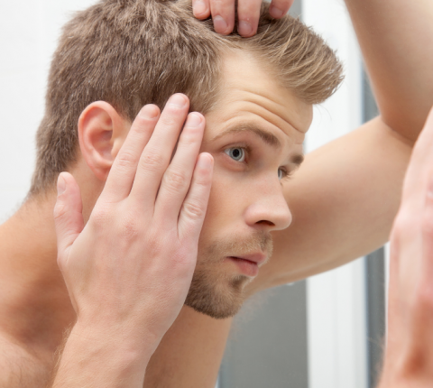 Hair Micrograft With FUE Technique: the 8 most FAQs